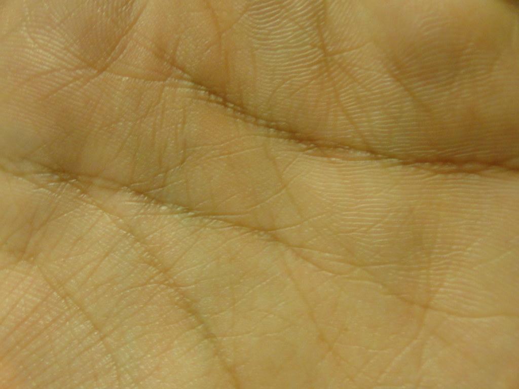 Hand / skin