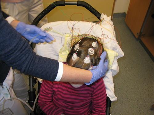 EEG-Verkabelung