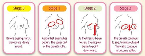 breastageing