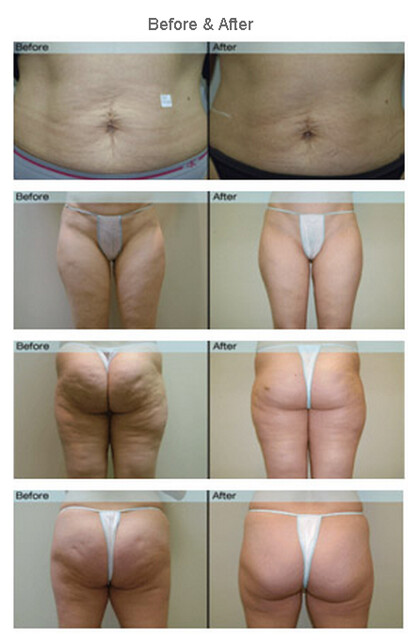 VelaShape Treatment - Before and After Photos