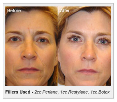 Restylane - Before and After Photos