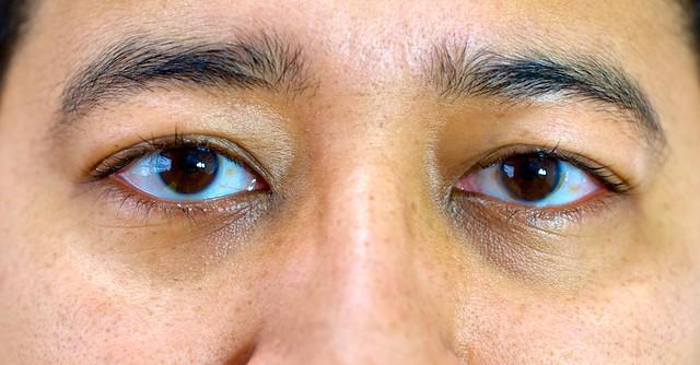 Olhos Dia 5 após cirurgia laser PRK de correção de miopia