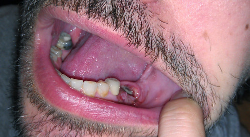 20111118 - hanging out - Clint minus tooth #19, bit of #18 sticking out of gums - teething?!?!?!?! - (by Chris Z)