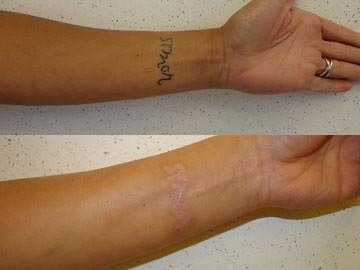 Laser tattoo removal by dermatologist Dr. Joel Schlessinger