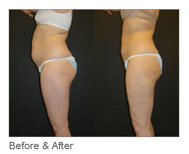 Tumescent Liposuction - Before and After Results