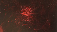 cancer-free stem cells cultivated by the millions using new U of Calgary developed method - pix 04