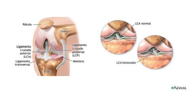 Rotura del ligamento cruzado anterior – Dr Francisco Javier Pérez ...