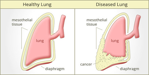 Mesothelioma Survival Rates Pictures