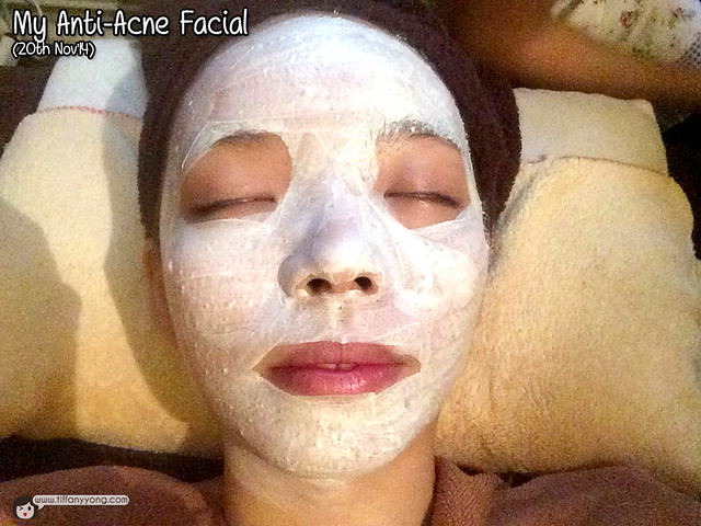 My Cozy Room Anti Acne Facial