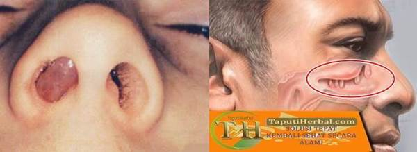 Polip hidung, komplikasi penyakit sinusitis yang seringkali terjadi