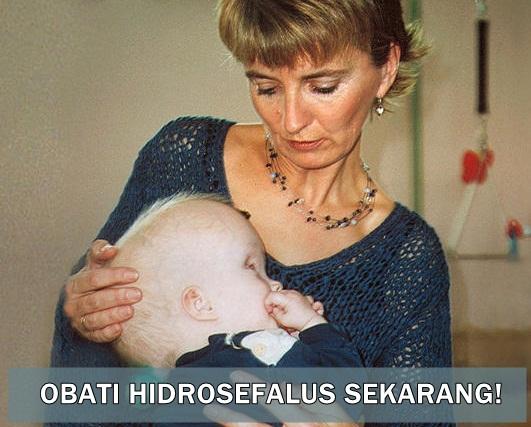 Obat Hydrocephalus di Apotik
