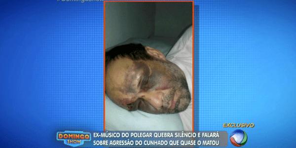 """""""Era para eu estar sendo enterrado"""", diz ex-Polegar após paulada na cabeça"""