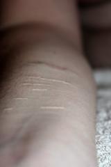 Self Harm Scars III
