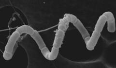 Spirulina sp. (scanning electron micrograph)