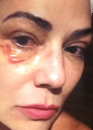 """Luiza Brunet rebate acusações do ex: """"Agressores insistem em distorcer"""""""