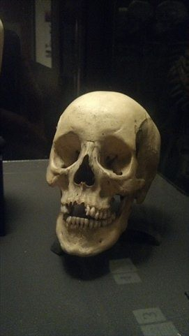 Skull in the Mutter Museum