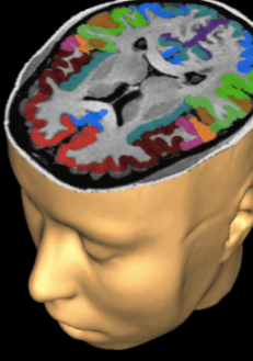 The Frey Laboratory at the University of Missouri is looking for additional amputees to take part in brain research.