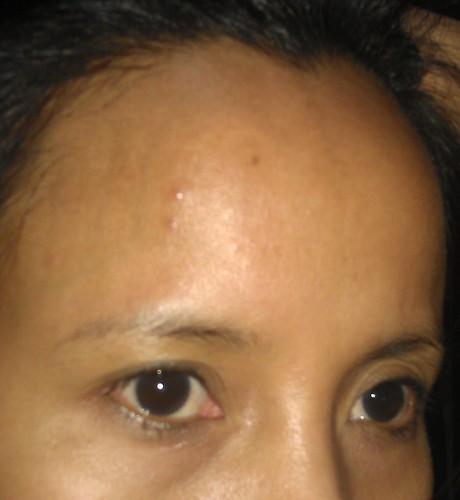 Celeteque Dermoscience Acne Solutions
