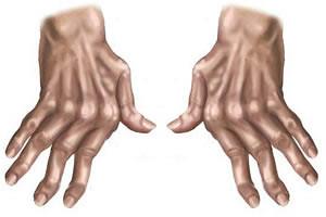 artrose (1)