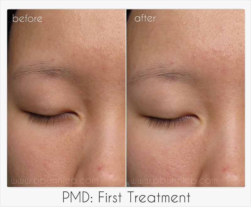 PMD First treatment-02