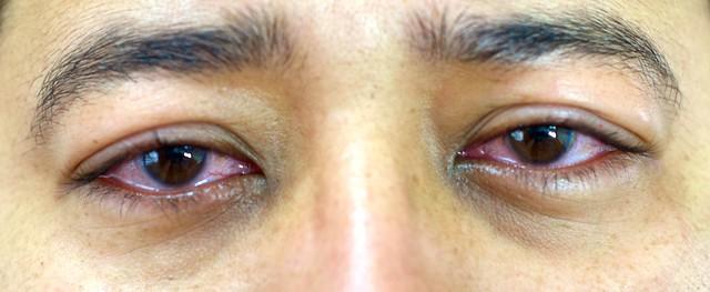 Olhos dia 3 após cirurgia laser PRK