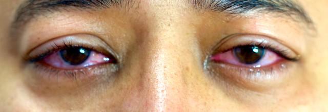 Olhos 48hs após cirurgia laser PRK de correção de miopia
