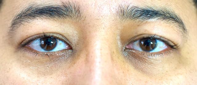 Olhos 1 semana após a cirurgia laser PRK de correção de miopia