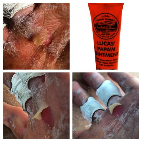 Got just the gear to fix this mess up. #pawpaw #ointment #blister #tear #repair #fast #muscle #up #hand #damage #PicFrame
