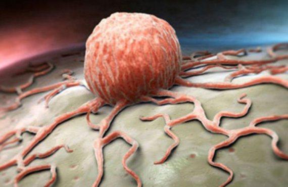 Células cancerosas resistentes a medicamentos