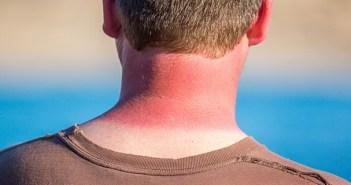 cómo tratar las quemaduras solares