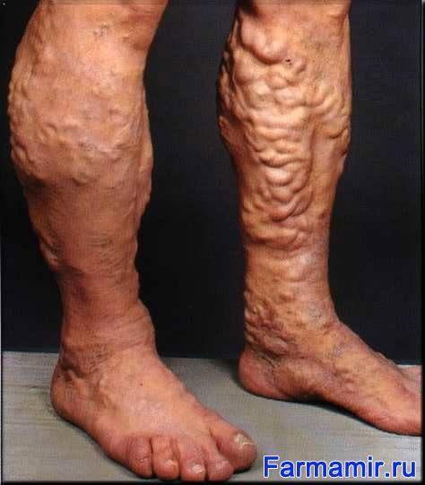 Продукты при варикозном расширении вен на ногах