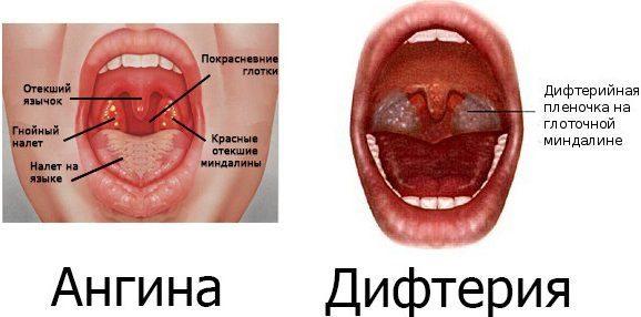 Ангина при дифтерии