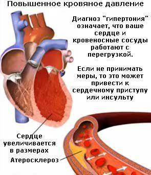Гипертензия в билиарной системе