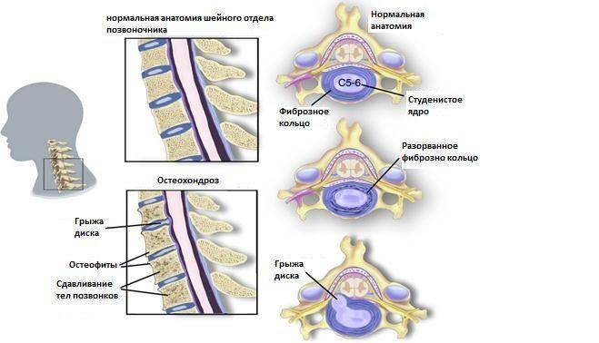 Рисунок 1. Остеохондроз шейного отдела позвоночника