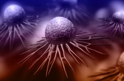 Leukemia Limfositik Kronis