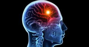 Kajian Obat Semax® : Obat Stroke dengan Penggunaan dan Izin Khusus dari BPOM