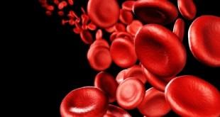 Ferumoxytol, Terapi Baru Atasi Anemia Defisiensi Zat Besi