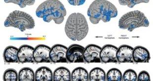 """Warna biru menunjukkan area penurunan volume materi abu-abu, mungkin mencerminkan pergeseran cairan cerebrospinal. Oranye menunjukkan daerah meningkatnya volume materi abu-abu, di daerah yang mengontrol pergerakan kaki. Ini mungkin mencerminkan plastisitas otak yang berhubungan dengan """"belajar bagaimana untuk bergerak di mikro"""". Ini adalah gambar pertama perubahan struktur otak pada manusia yang melakukan perjalanan luar angkasa. Credit: Image courtesy of University of Michigan"""