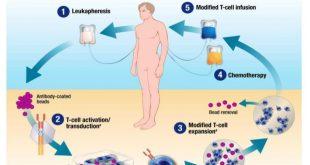 Tisagenlecleucel, Terapi Genetik Imunoseluler Pertama Untuk Leukimia Disetujui FDA