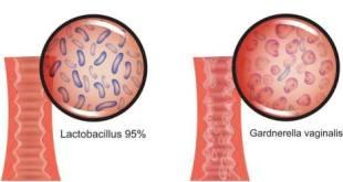 FDA Menyetujui Granul Oral Pertama dengan Dosis Tunggal untuk Pengobatan Infeksi Vaginal Karena Bakteri