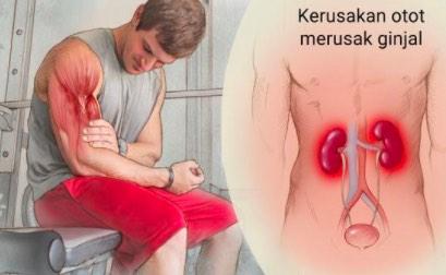 BPOM Jelaskan Interaksi Rosuvastatin dan Ticagrelor Mengakibatkan Risiko Rhabdomyolysis
