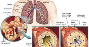 Cinqair (reslizumab), Solusi Baru Terapi Asma dengan Antibodi Monoklonal