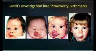 """Tanda Lahir """"Strawberry"""" pada Bayi bantu Temukan Terapi Kanker Baru"""