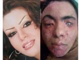 اسید پاشی لباس شخصی های حکومتی به صورت 8 دختر جوان، به بهانه ی بد حجابی