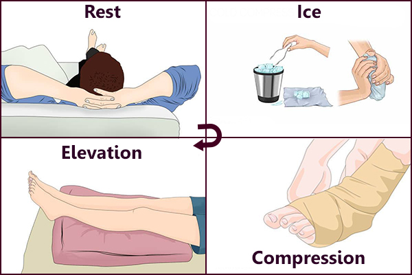Rest, Ice, Compression and Elevation - Remedies for Physical Exhaustion
