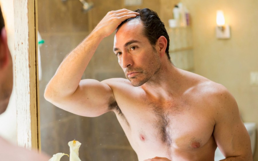 Why Do Men Go Bald and How To Prevent it