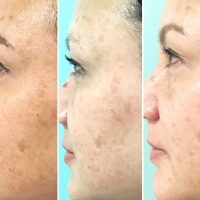 IPL for Hyperpigmentation by Bliss Day Spa