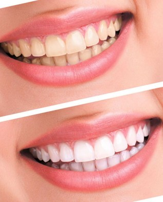 SuperWhite Professional At Home 3D Teeth Whitening Kit Beauty