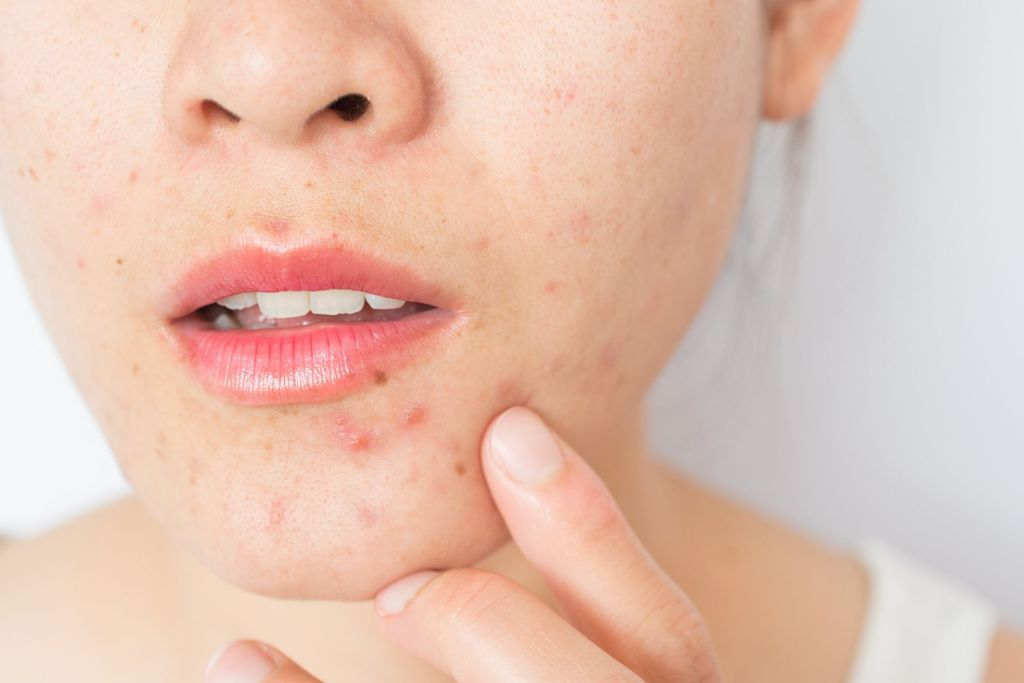 The Curse of Hormonal Acne Tips and Prevention