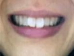 ホワイトニング1時間後の歯